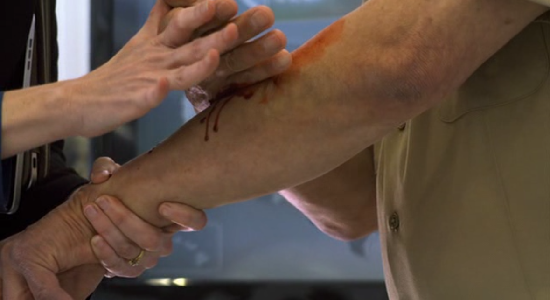 """- """"Oh mon dieu, je saigne du Ketchup !"""""""